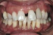 Severe Gum Disease Bone Loss