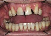 Congenitally Missing Incisor Teeth