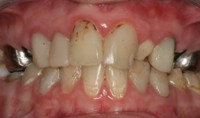 Genetics Denture Teeth Replacements
