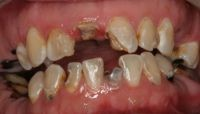 Austin Young adult denture diagnosis pic