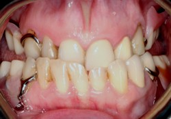 Old Denture Partials