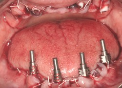 TeethInAnHour Mandible Implants