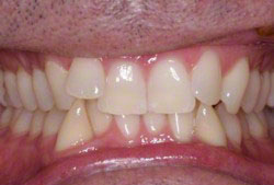 Incisor Malocclusion