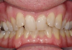Angulated Teeth