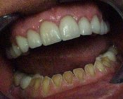 Bad Teeth Pictures Photo Gallery Diagnosis Treatment ...