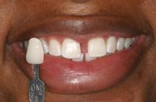 how to use efferdent to clean invisalign