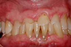 Occlusal Orthodontic Breaking Teeth Damage