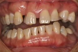 Bad Orthodontics Periodontitis Combination