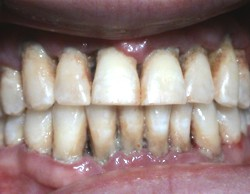 Tartar Calculus Gum Disease Byproduct
