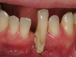 Bad Teeth Super Erupted Cause Treatment Problems