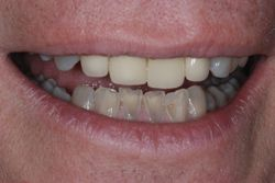 Transparent Manbibular Anterior Teeth