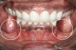 long term effects of oral steroids