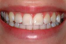 Modifying Teeth Enamel for Whiteness Bleaching New Jersey