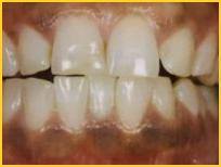 Black Gum Laser Treatments Bayside Pictures