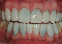 Leaking Veneers