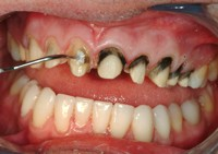 Fix Bad Veneers Pic After