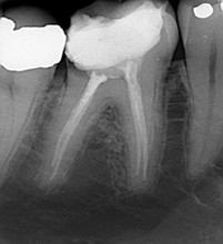 Xray Photo Endodontic Root Canal Treatment